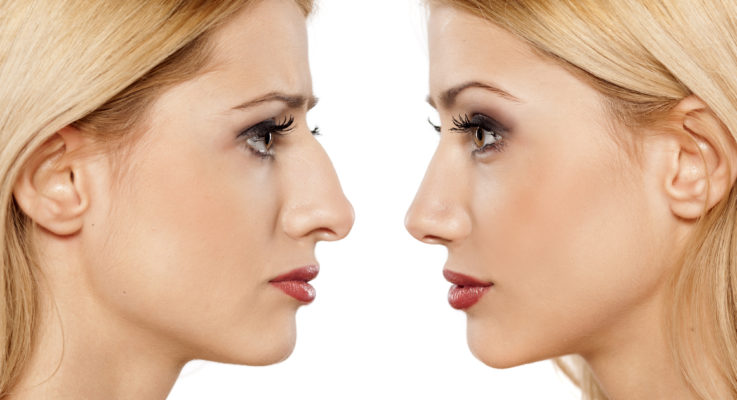 Important Facts to Note about Rhinoplasty